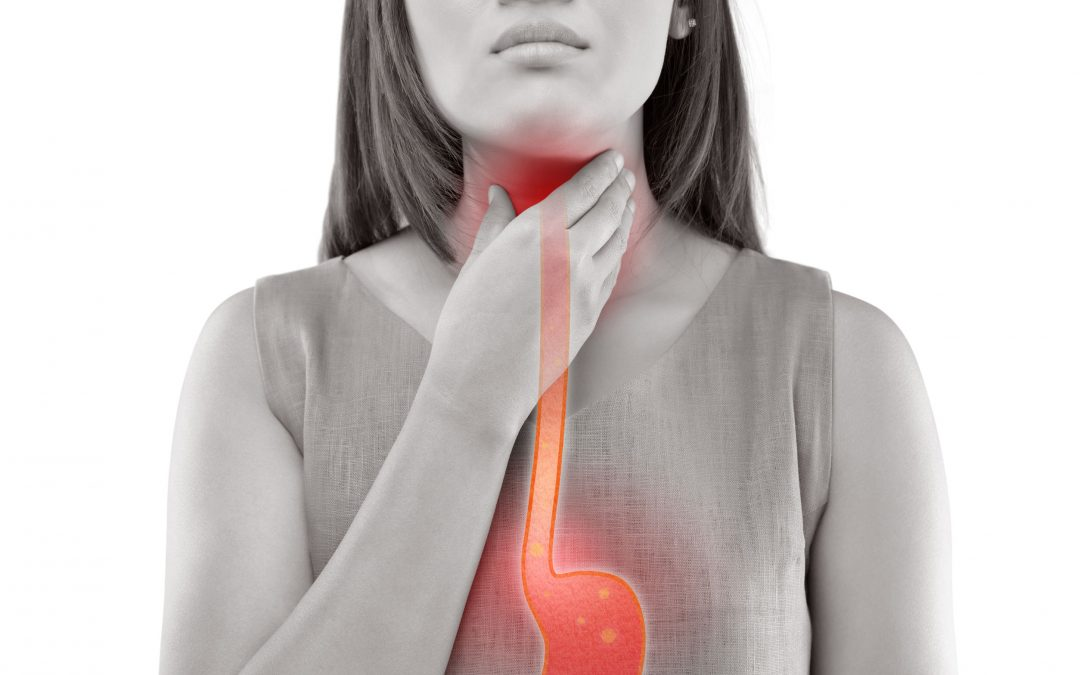 Which is the Best Acid Reflux Remedy For Me?